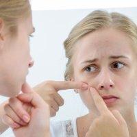 Alimentación y acné en adolescentes