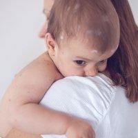 Cómo diferenciar sarampión, varicela y rubéola en los niños