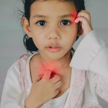Síntomas para detectar si tu hijo tiene escarlatina