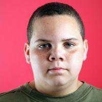 Problema de la obesidad en la adolescencia