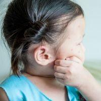 Claves para evitar picaduras de mosquitos en niños y embarazadas