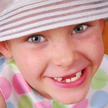 Los suplementos de hierro producen manchas en los dientes de los niños