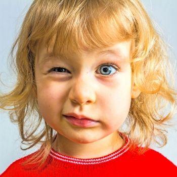 Cuando el niño ve lucecitas o chiribitas