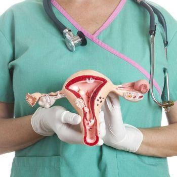 El síndrome del ovario poliquístico y la esterilidad