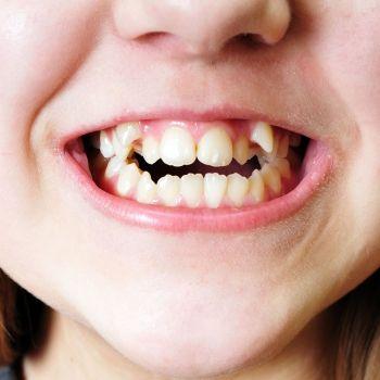 Cómo puede lidiar con las burlas el niño que tiene un defecto físico