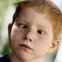 La discriminación hacia los niños bizcos en los cumpleaños