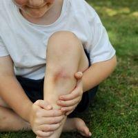 Qué hacer con los hematomas y moretones de los niños