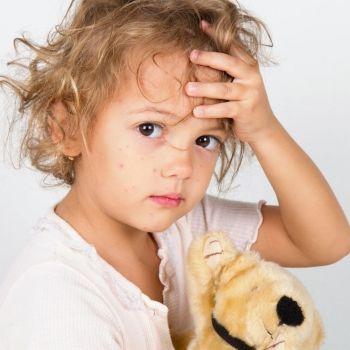 El sarampión se multiplica por dejadez de los padres