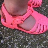 Sandalias de goma: el calzado más peligroso para los niños