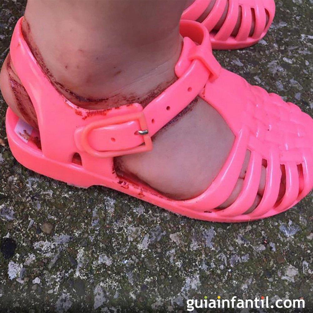 d42eb606f30 Sandalias de goma  el calzado más peligroso para los niños