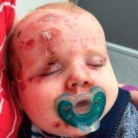 Lo que puede ocurrir si no vacunas de varicela a tu bebé