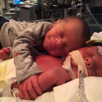 El conmovedor abrazo de un bebé a su gemelo enfermo tras el parto