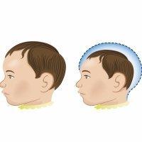 Un pesticida y no el virus Zika asociado a los casos de microcefalia en bebés
