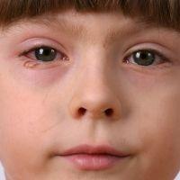 Qué nos dicen los ojos de la salud de los niños