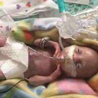 El caso del bebé más prematuro jamás nacido