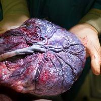 La polémica moda de comerse la placenta tras el parto