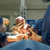 La polémica sobre el aborto posparto