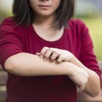 La dermatitis atópica y la obesidad infantil