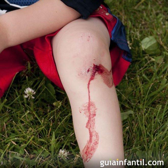 Heridas y quemaduras en los niños