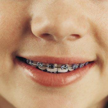 Tipos de aparatos de ortodoncia para los niños