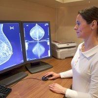 ¿Los nódulos que duelen son o no son cancerígenos?