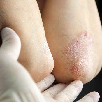 Psoriasis en los niños. Enfermedades de la piel