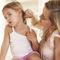 Cómo detectar las alergias alimentarias en el niño
