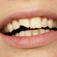 Qué hacer ante la rotura del diente de un niño