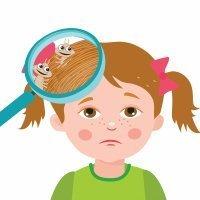 Qué son los piojos y liendres y cómo se contagian