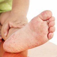 El virus mano, pie y boca en los niños. Síntomas y tratamiento