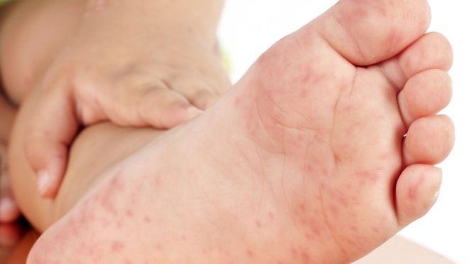 El Virus Mano Pie Y Boca En Los Niños Síntomas Y Tratamiento