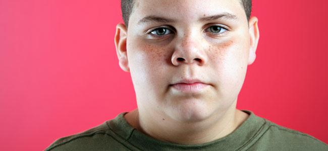 Problemas de la obesidad en la adolescencia
