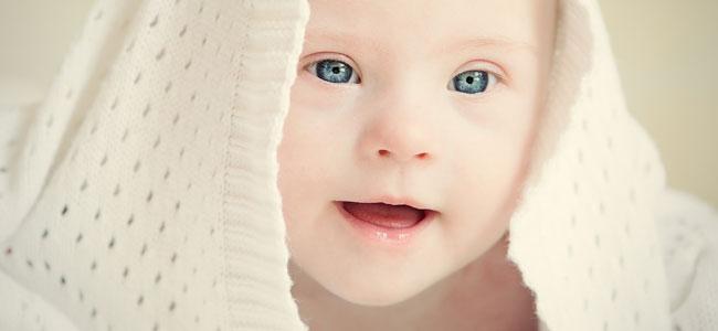 Resultado de imagen para síndrome de down bebe
