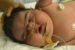 El bebé más grande del mundo nace de una madre con diabetes gestacional