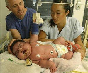 Bebé más grande del mundo nace en Alemania