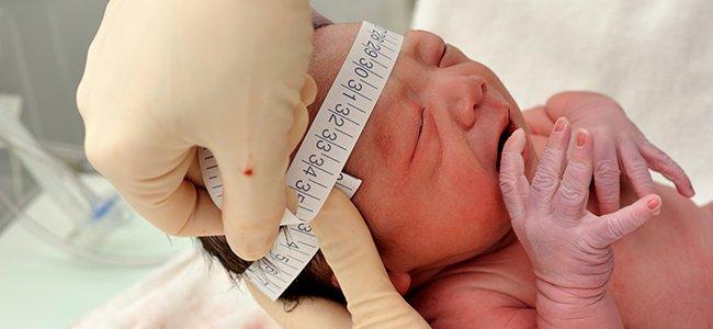 Bebés con microcefalia a causa del virus Zika