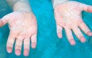 Por qué se arrugan los dedos dentro del agua