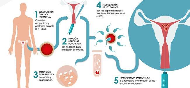 Resultado de imagen para fecundacion in vitro