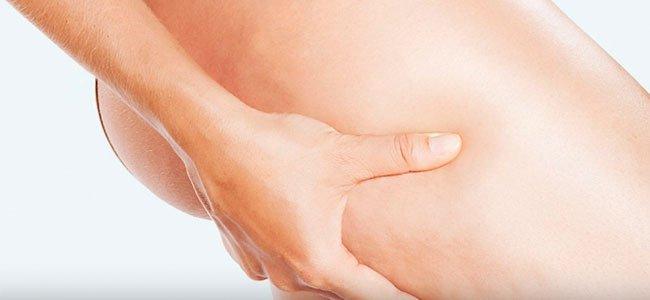 Varices y hemorroides en el embarazo