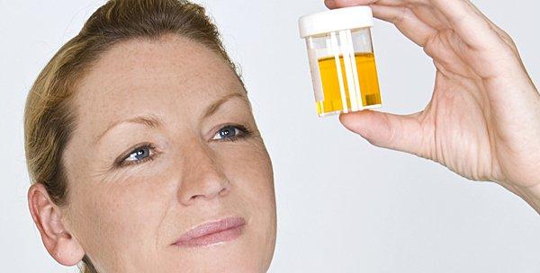 medico-examinando-orina