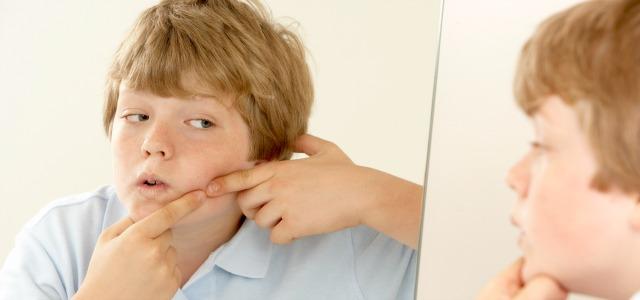 Cómo quitar los granos de la piel de los niños