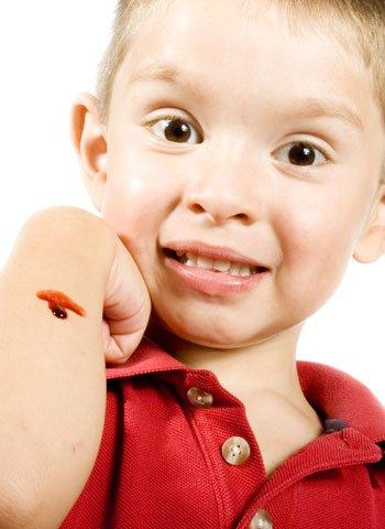 Reacciones de los niños a las heridas