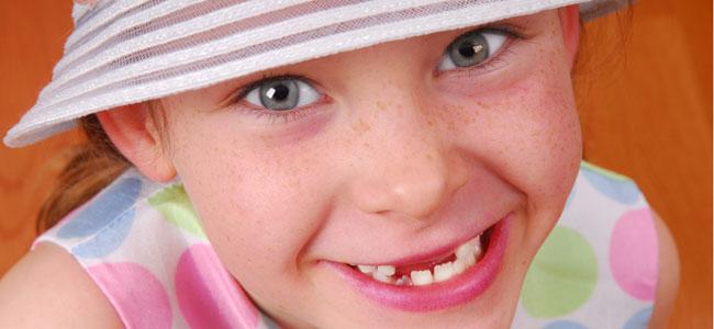 Manchas de hierro en los dientes de los niños