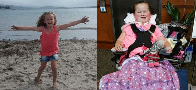 Afm enfermedad que paraliza a los niños