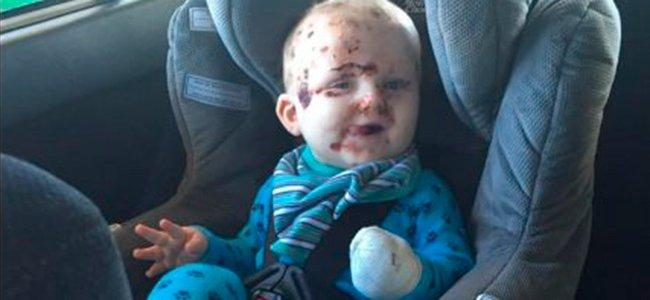 Bebé con ampollas de varicela