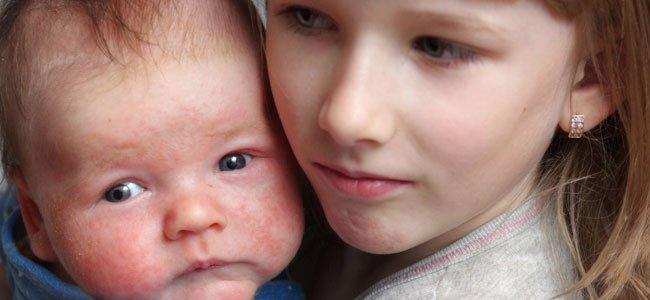 Bebé con dermatitis