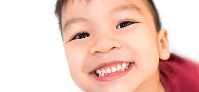 Bruxismo dental en los niños
