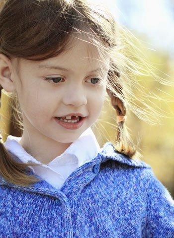 Caída de los dientes de los niños
