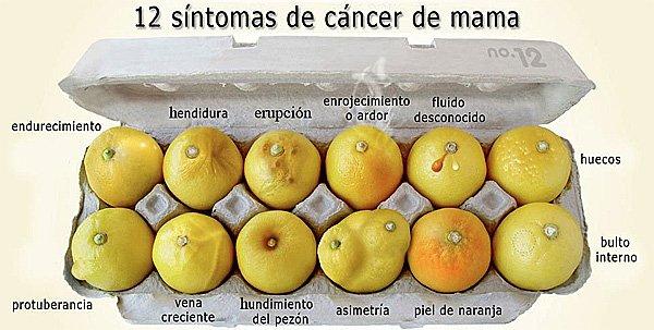 12 síntomas que pueden indicar un cáncer de mama