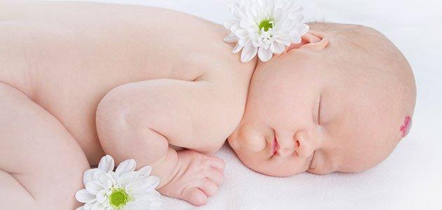 Bebé con mancha en la piel